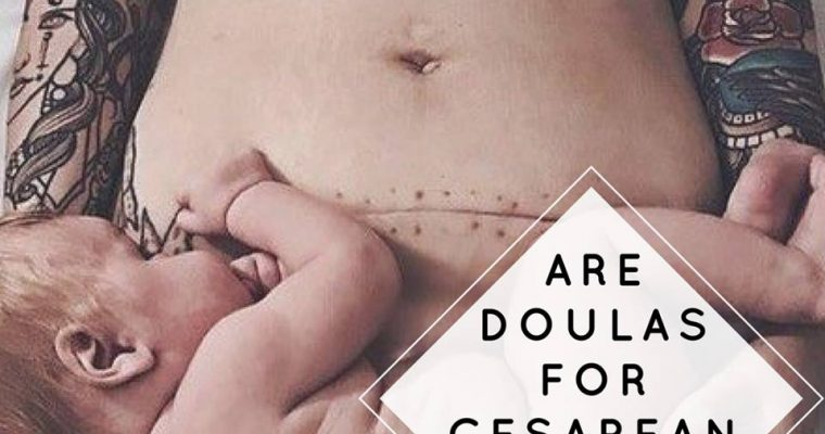 Are Doulas for a Cesarean Birth?